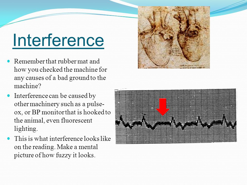 Interference Remember that rubber mat and how you checked the machine for any causes of a bad ground to the machine