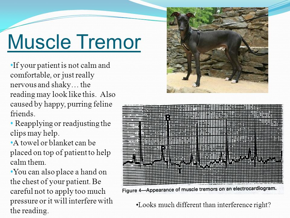 Muscle Tremor