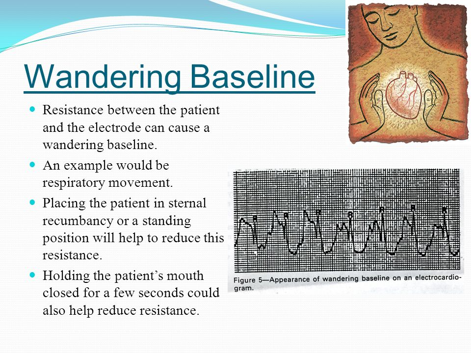 Wandering Baseline Resistance between the patient and the electrode can cause a wandering baseline.