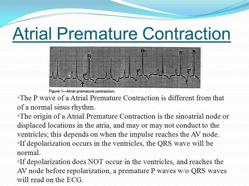 Atrial Premature Contraction
