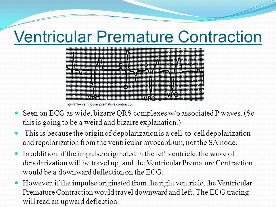 Ventricular Premature Contraction