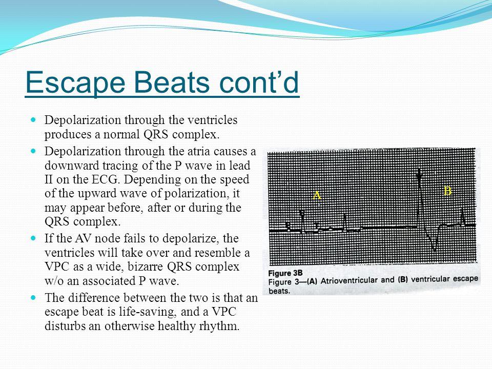 Escape Beats cont'd Depolarization through the ventricles produces a normal QRS complex.