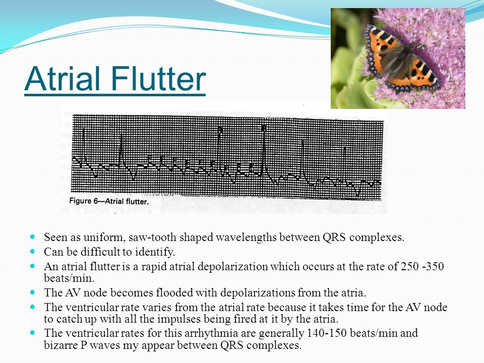 Atrial Flutter Seen as uniform, saw-tooth shaped wavelengths between QRS complexes. Can be difficult to identify.