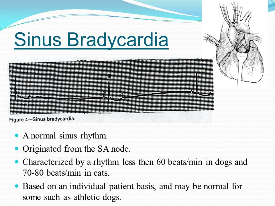 Sinus Bradycardia A normal sinus rhythm. Originated from the SA node.