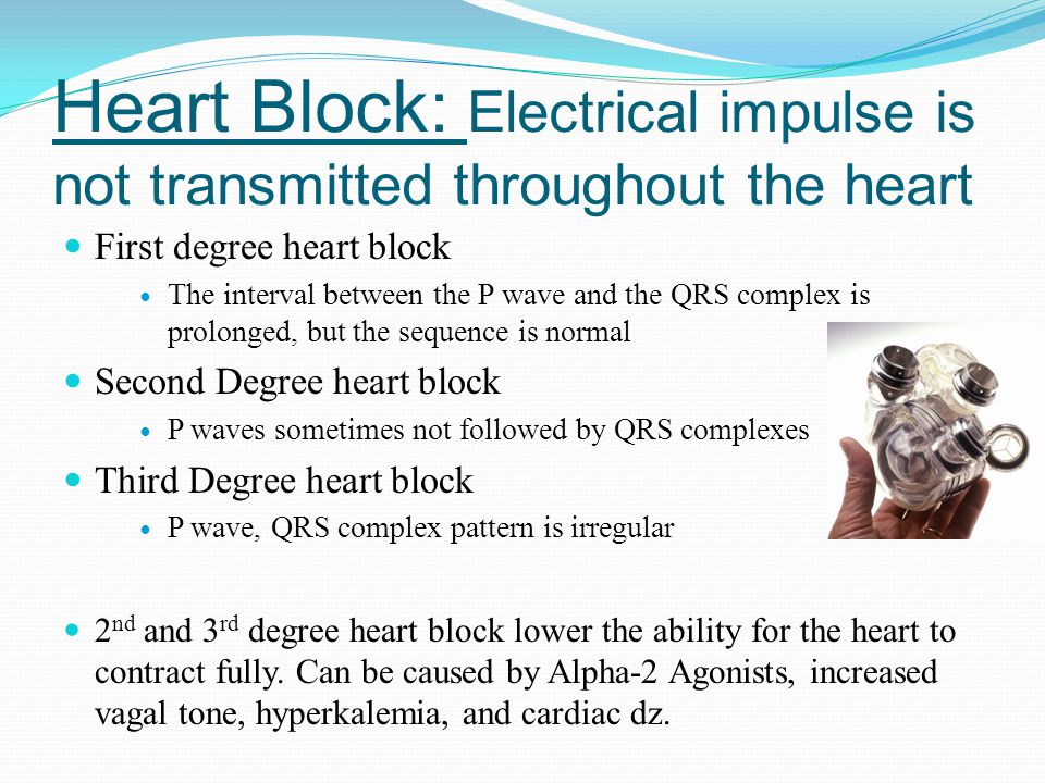 Heart Block: Electrical impulse is not transmitted throughout the heart