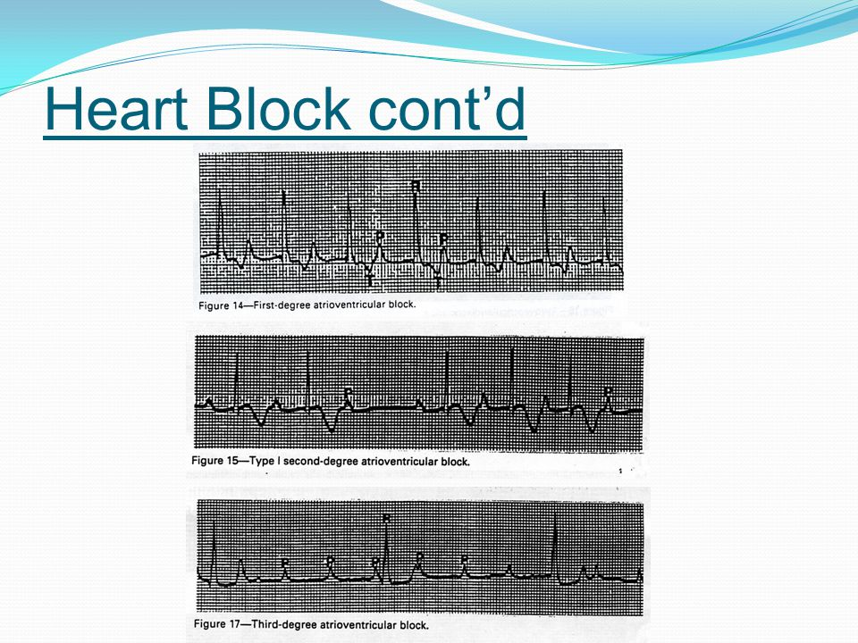 Heart Block cont'd