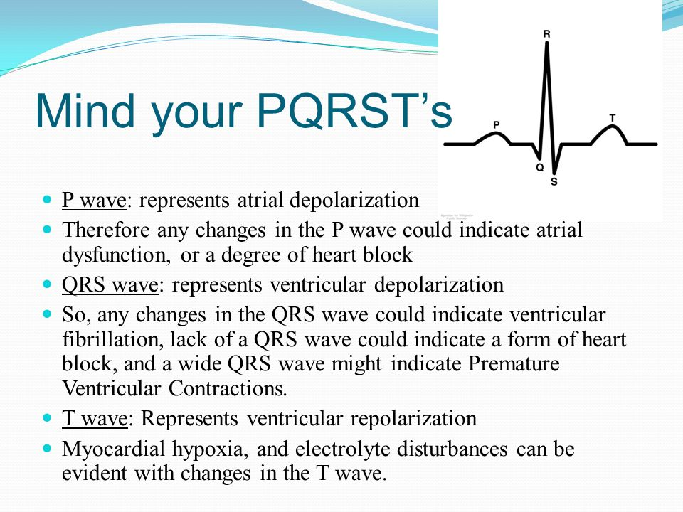 Mind your PQRST's P wave: represents atrial depolarization