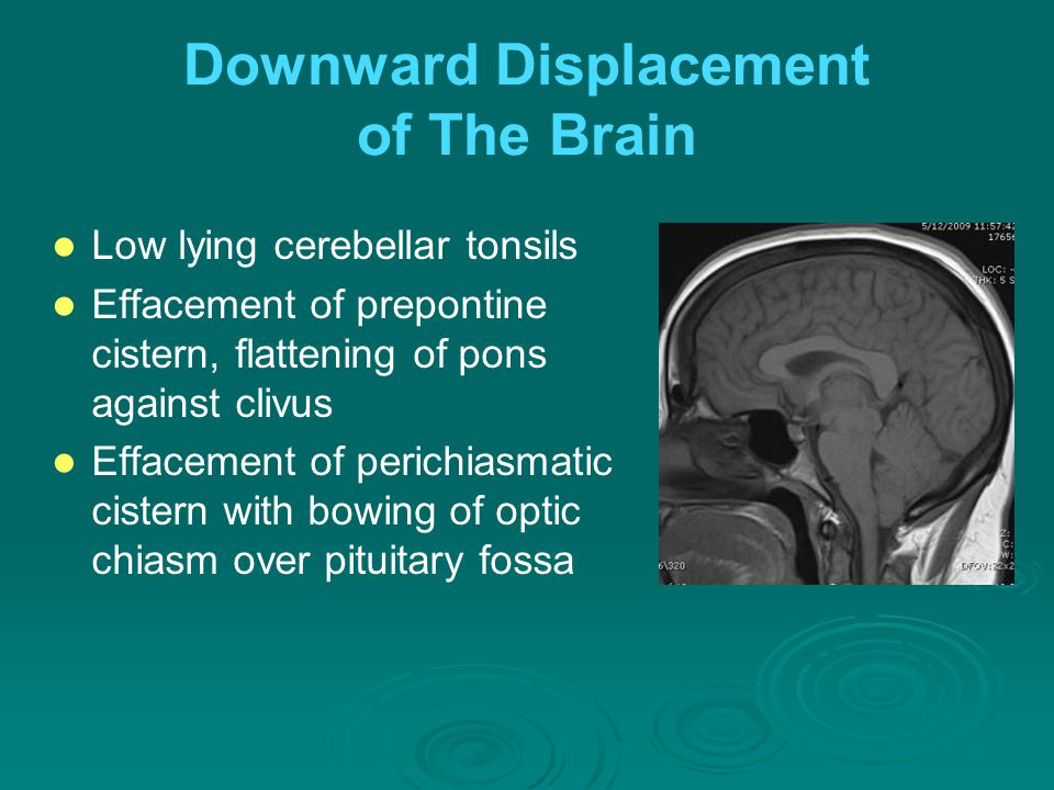 Downward Displacement of The Brain