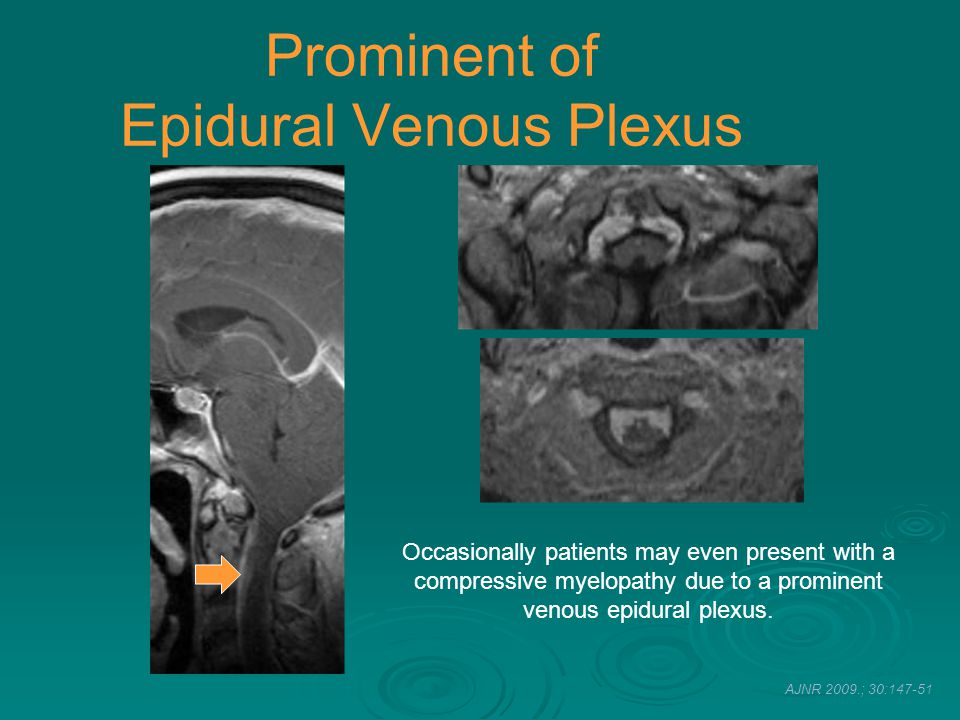 Prominent of Epidural Venous Plexus
