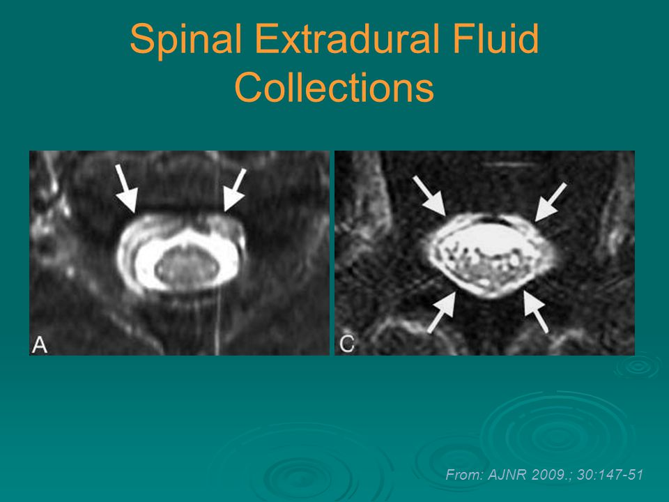 Spinal Extradural Fluid Collections