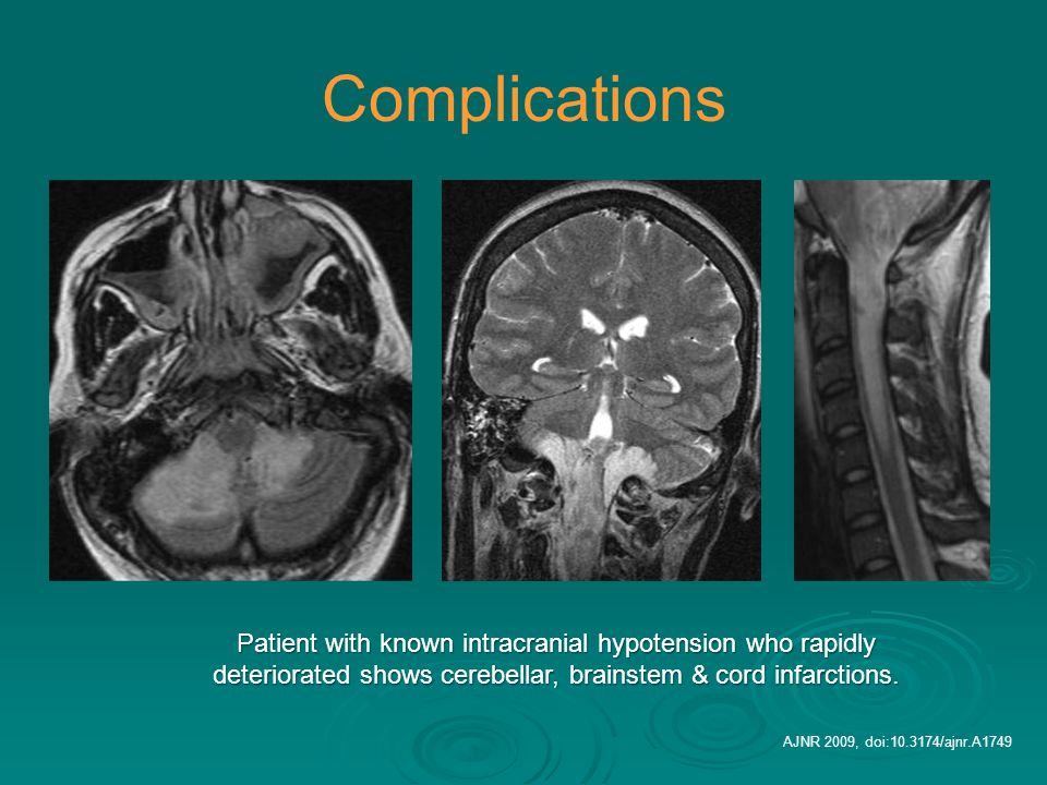 Complications Patient with known intracranial hypotension who rapidly deteriorated shows cerebellar, brainstem & cord infarctions.