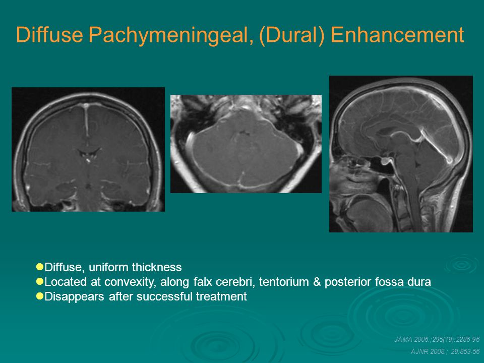 Diffuse Pachymeningeal, (Dural) Enhancement