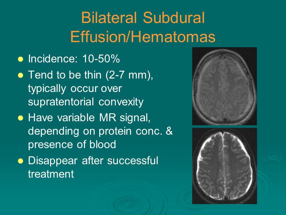 Bilateral Subdural Effusion/Hematomas