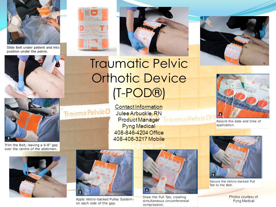 Traumatic Pelvic Orthotic Device (T-POD®)