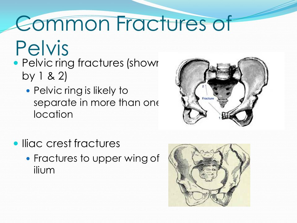 Common Fractures of Pelvis