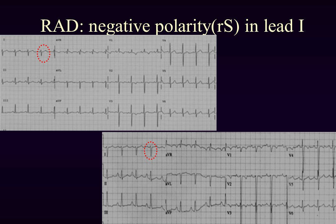 RAD: negative polarity(rS) in lead I