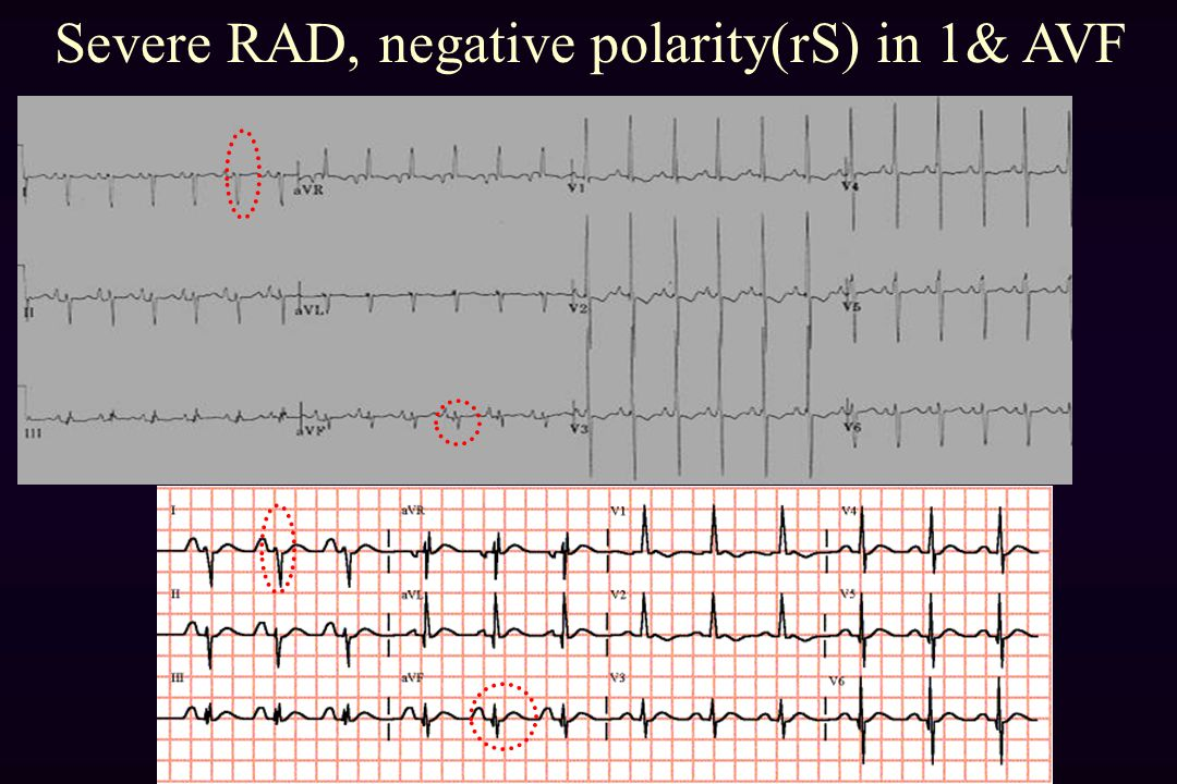 Severe RAD, negative polarity(rS) in 1& AVF