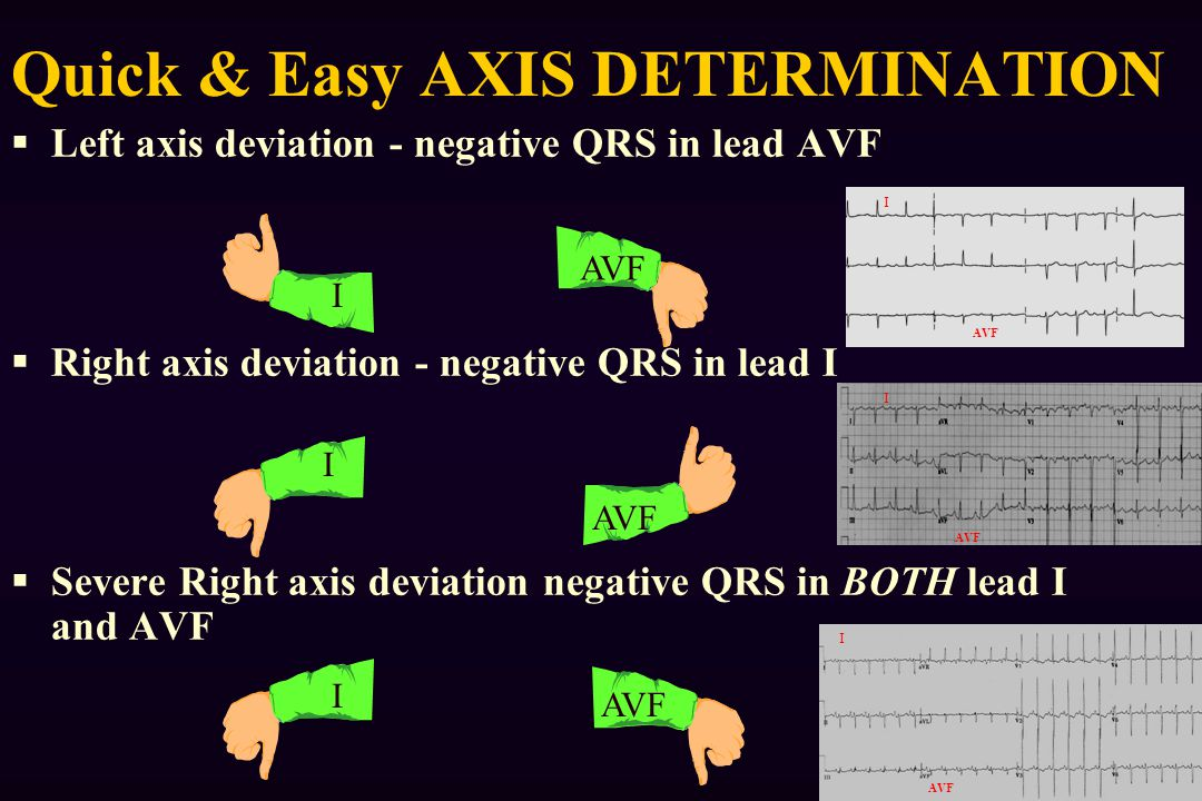 Quick & Easy AXIS DETERMINATION
