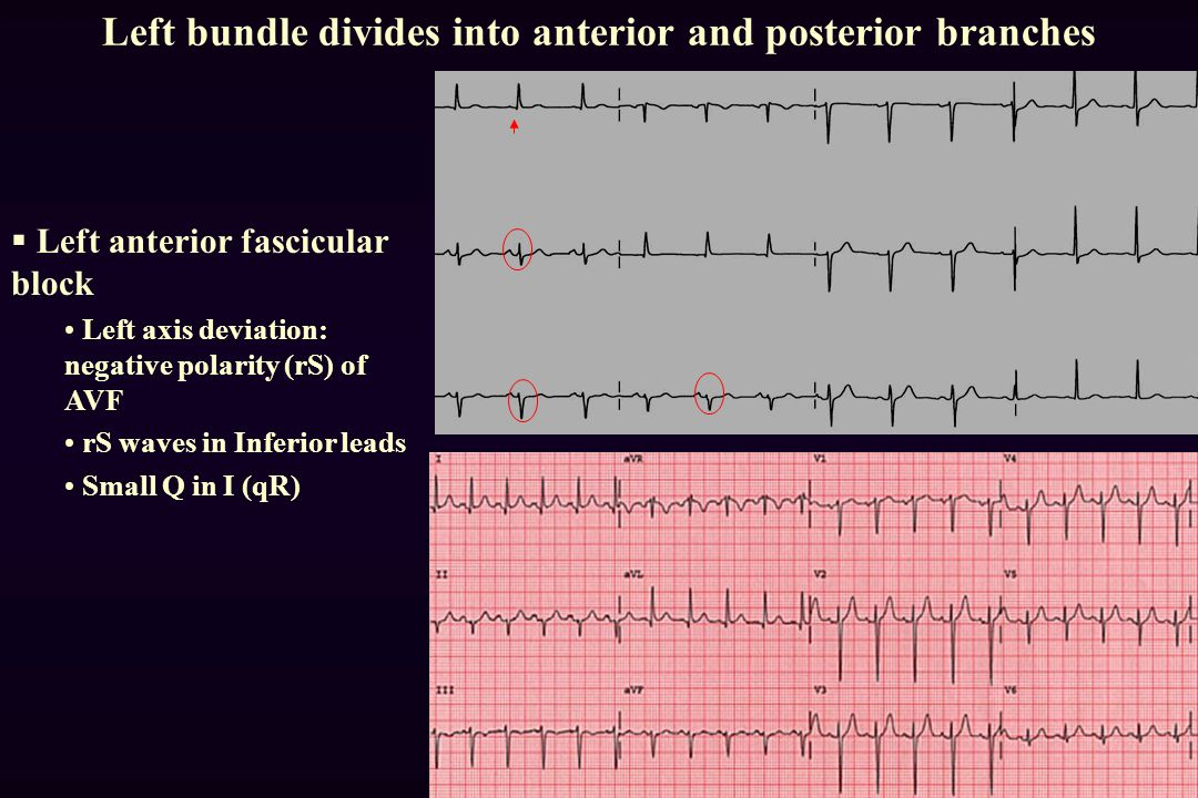 Left bundle divides into anterior and posterior branches