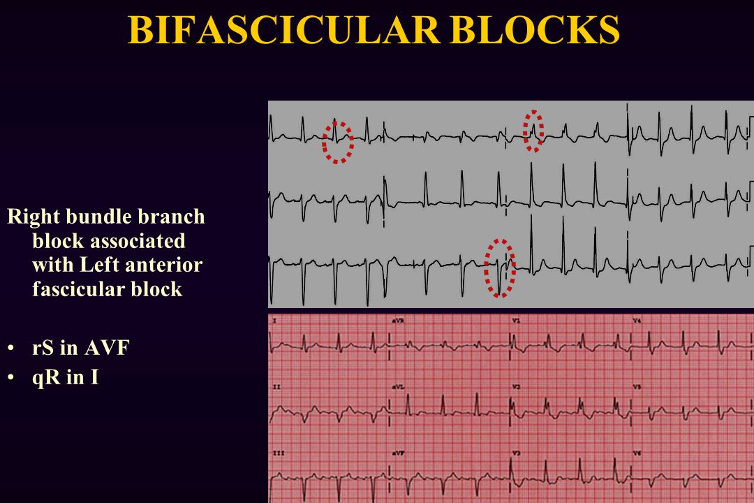 BIFASCICULAR BLOCKS Right bundle branch block associated with Left anterior fascicular block. rS in AVF.