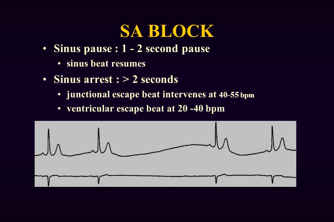 SA BLOCK Sinus pause : 1 - 2 second pause
