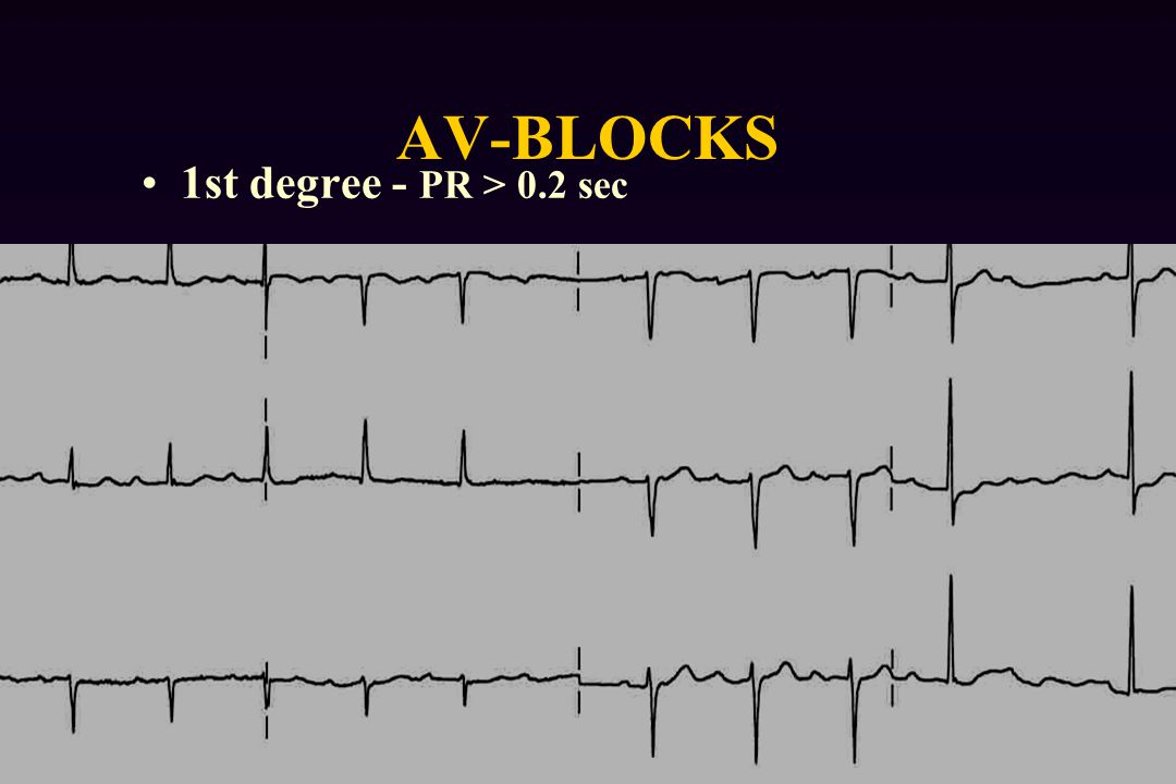 AV-BLOCKS 1st degree - PR > 0.2 sec