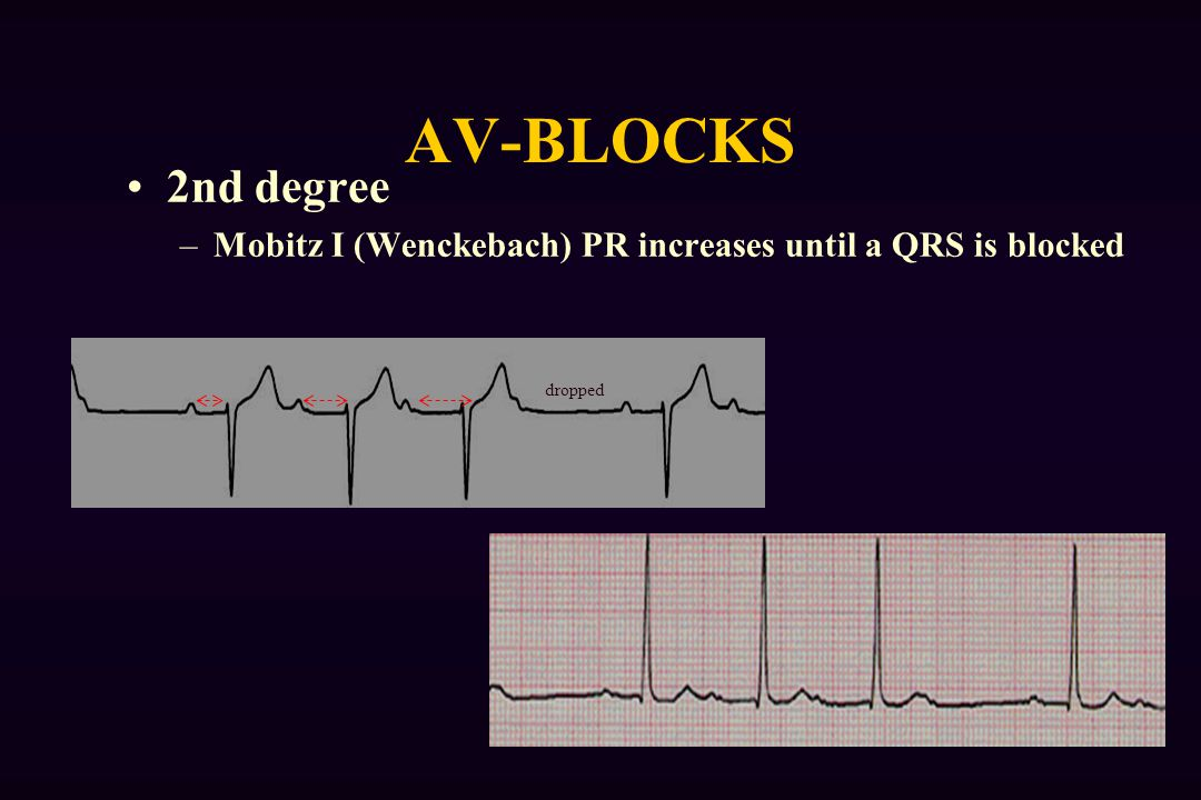 AV-BLOCKS 2nd degree Mobitz I (Wenckebach) PR increases until a QRS is blocked dropped