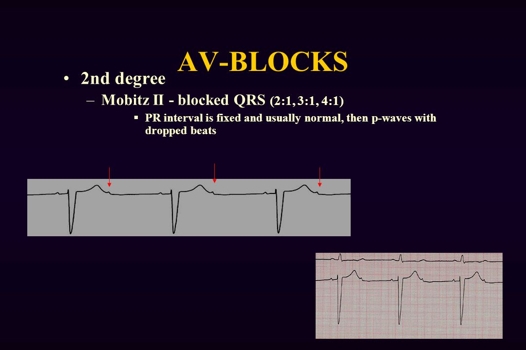 AV-BLOCKS 2nd degree Mobitz II - blocked QRS (2:1, 3:1, 4:1)