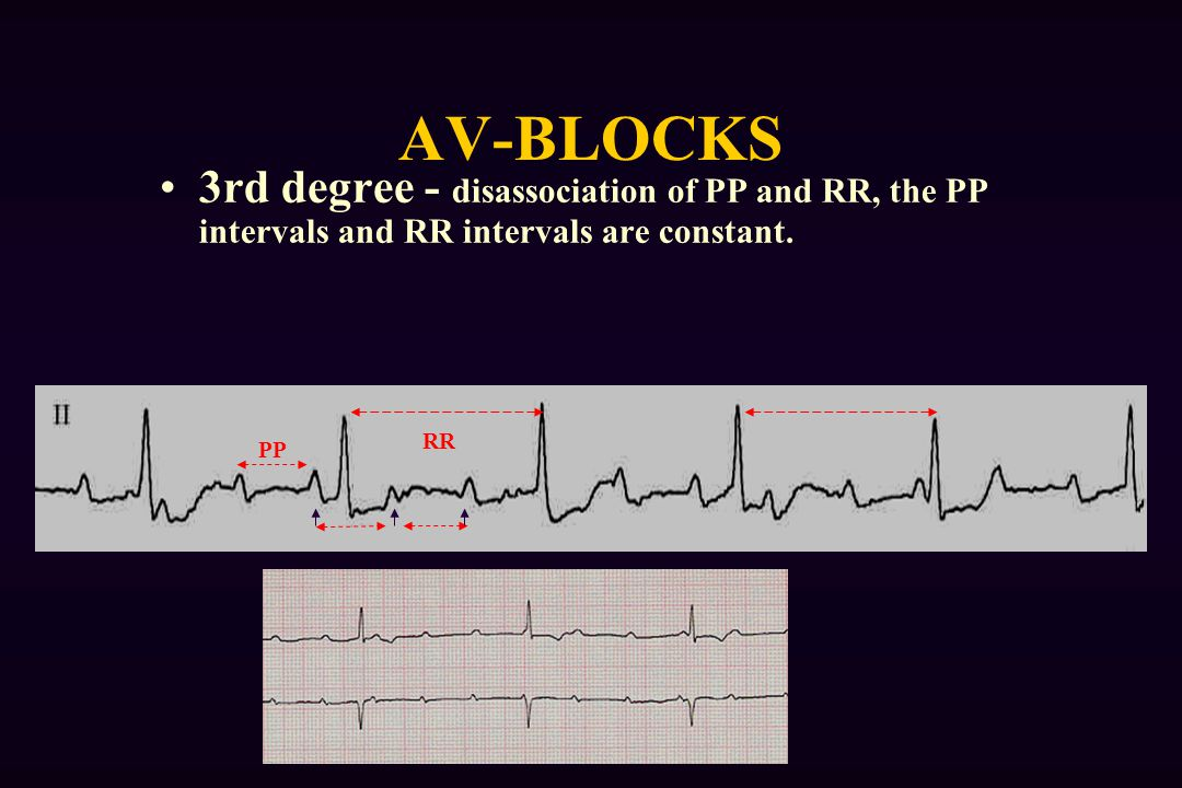 AV-BLOCKS 3rd degree - disassociation of PP and RR, the PP intervals and RR intervals are constant.