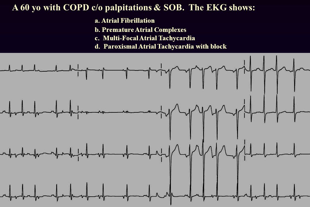 A 60 yo with COPD c/o palpitations & SOB. The EKG shows:. a
