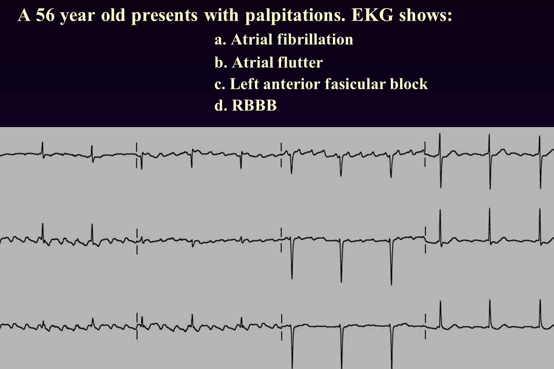 A 56 year old presents with palpitations. EKG shows:. a