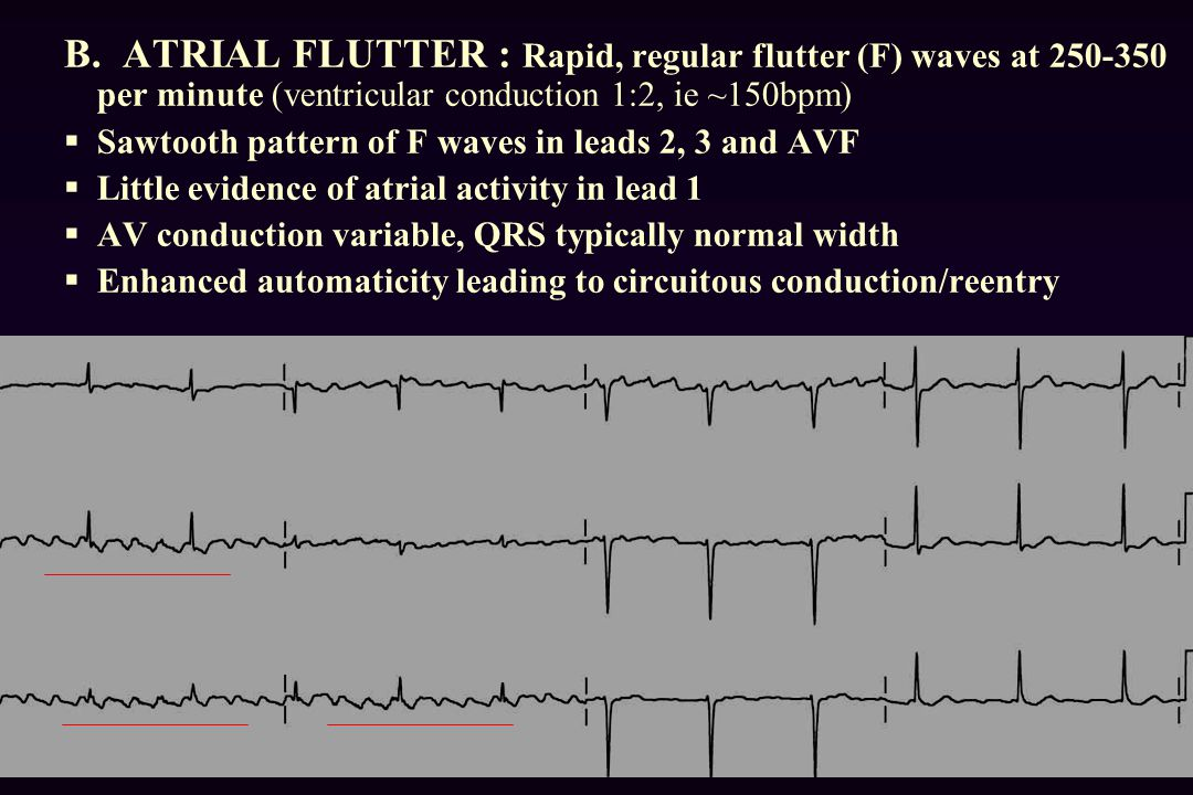B. ATRIAL FLUTTER : Rapid, regular flutter (F) waves at 250-350 per minute (ventricular conduction 1:2, ie ~150bpm)