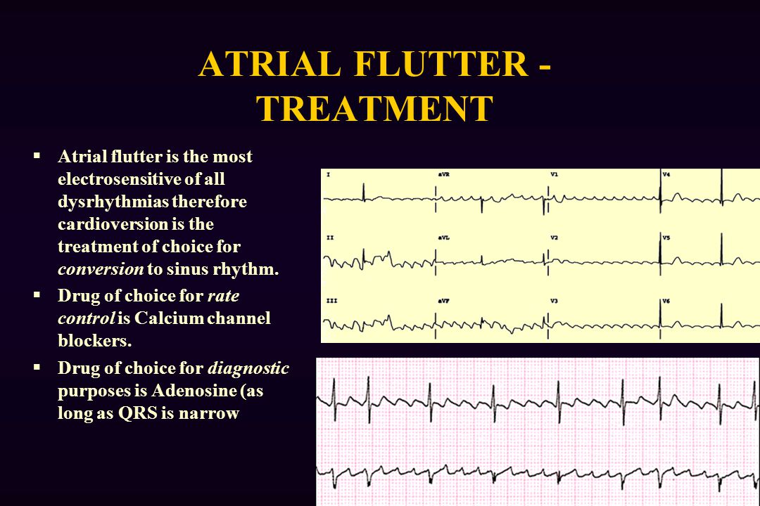 ATRIAL FLUTTER - TREATMENT