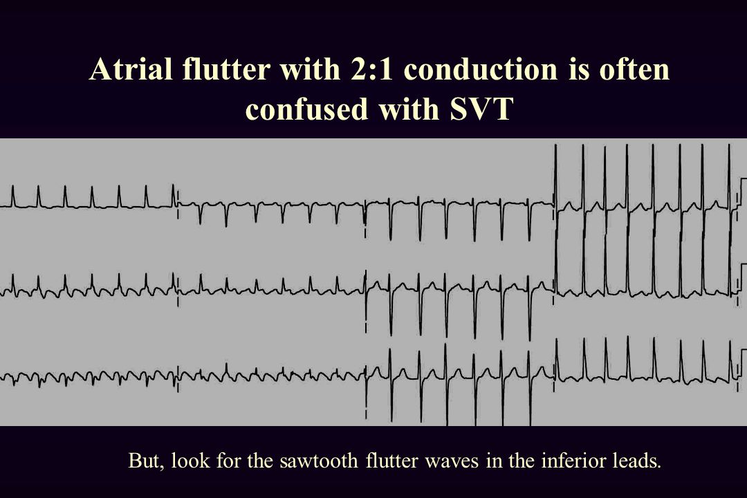 Atrial flutter with 2:1 conduction is often confused with SVT