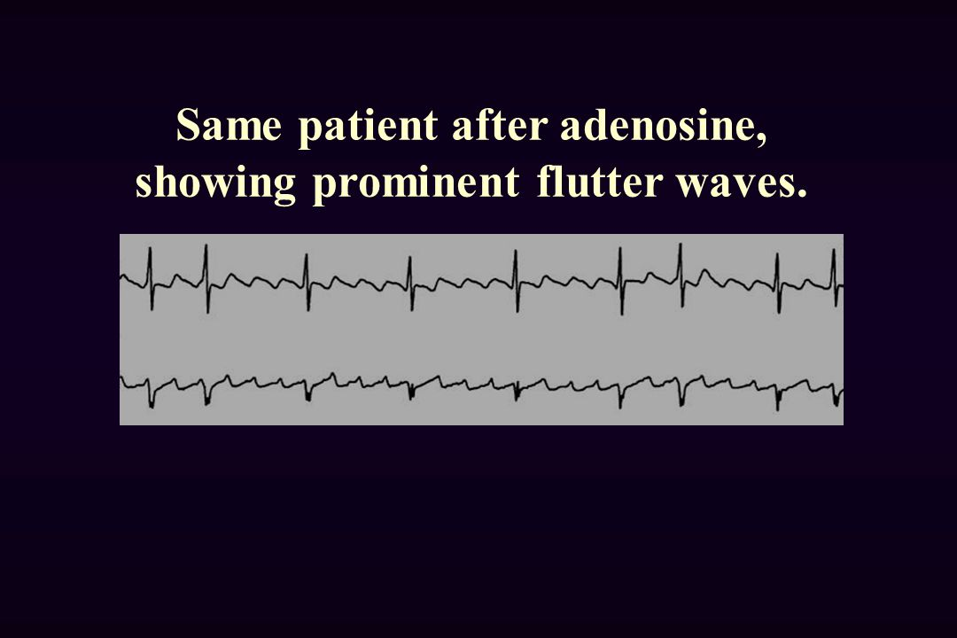 Same patient after adenosine, showing prominent flutter waves.