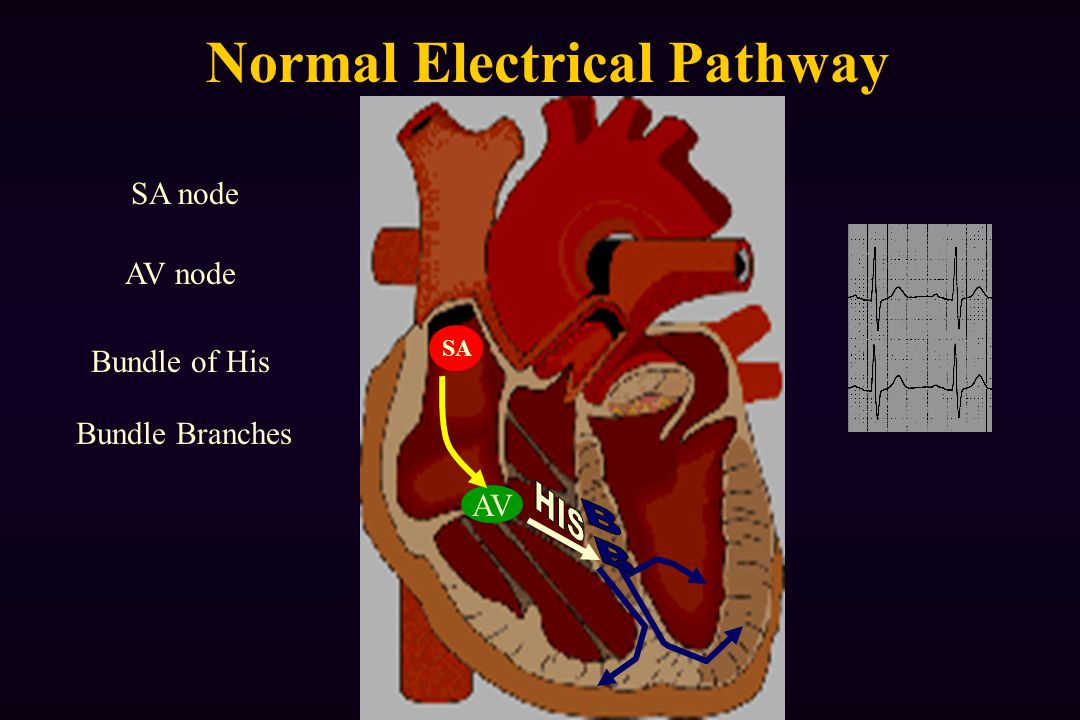 Normal Electrical Pathway