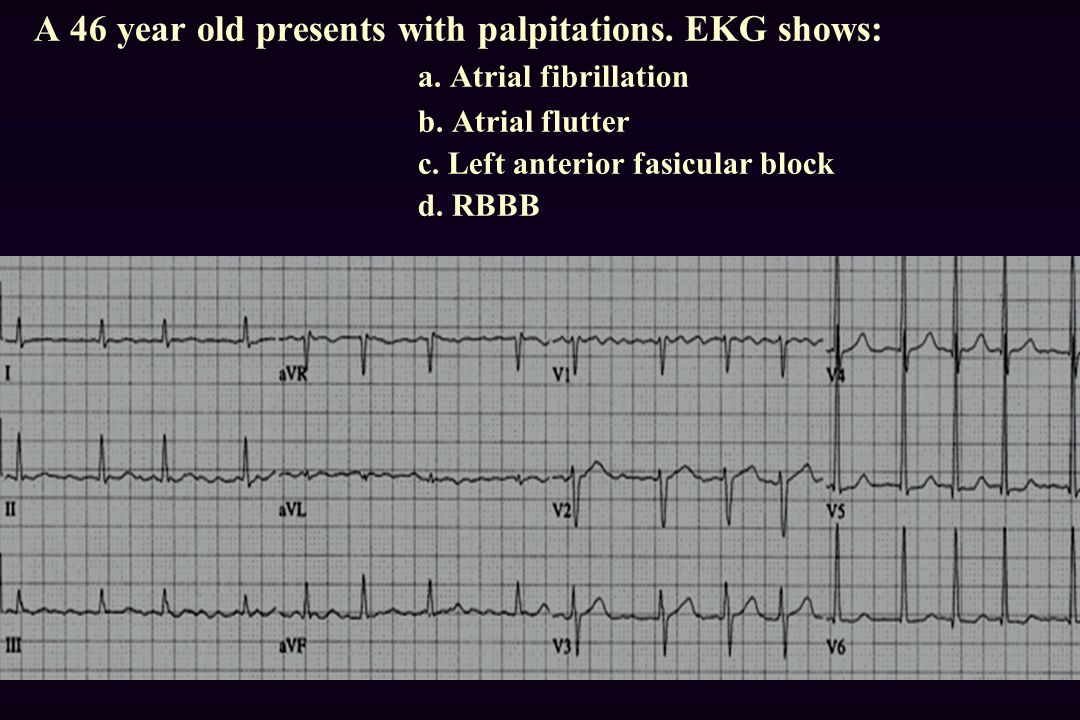 A 46 year old presents with palpitations. EKG shows:. a
