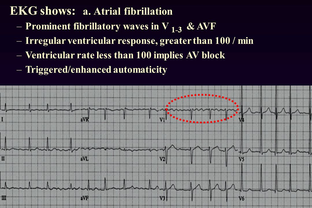 EKG shows: a. Atrial fibrillation