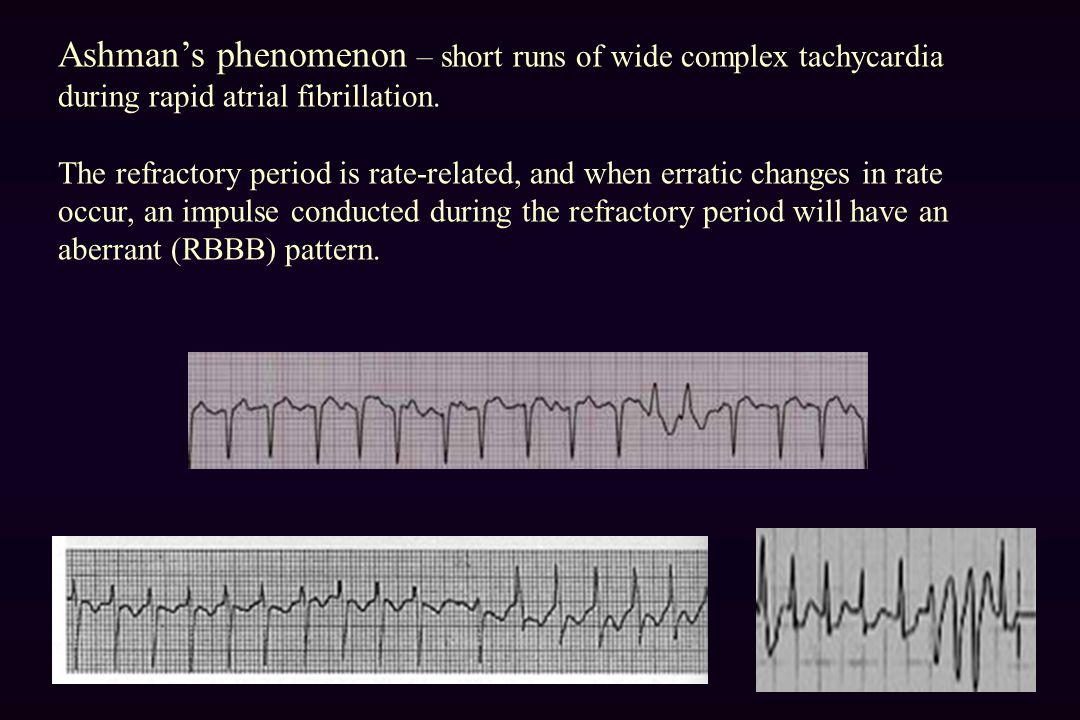 Ashman's phenomenon – short runs of wide complex tachycardia during rapid atrial fibrillation.