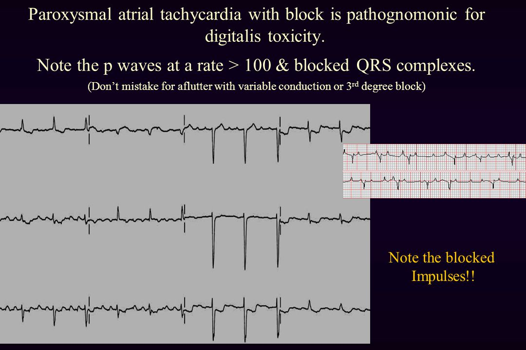 Note the p waves at a rate > 100 & blocked QRS complexes.
