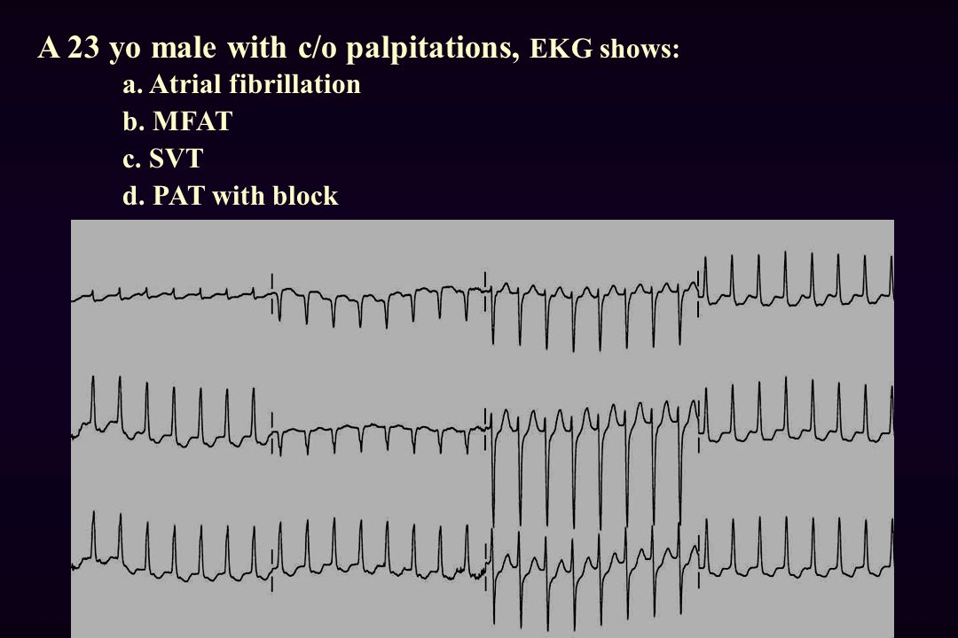 A 23 yo male with c/o palpitations, EKG shows: