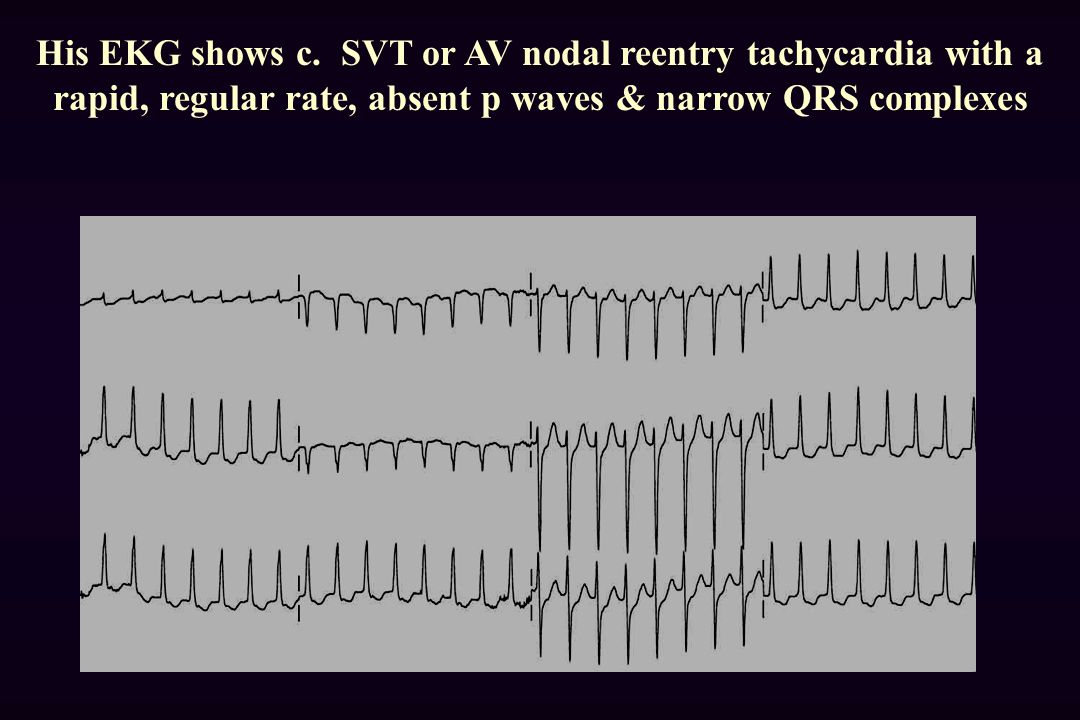 His EKG shows c.