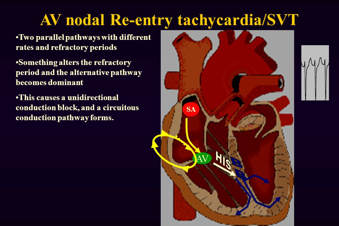 AV nodal Re-entry tachycardia/SVT