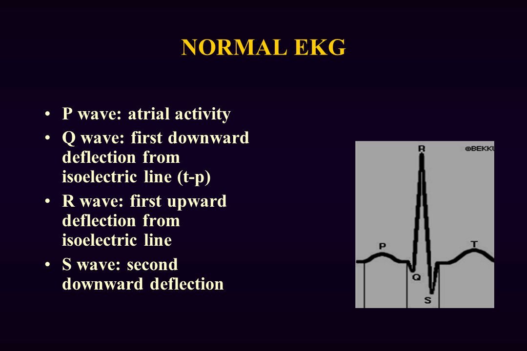 NORMAL EKG P wave: atrial activity