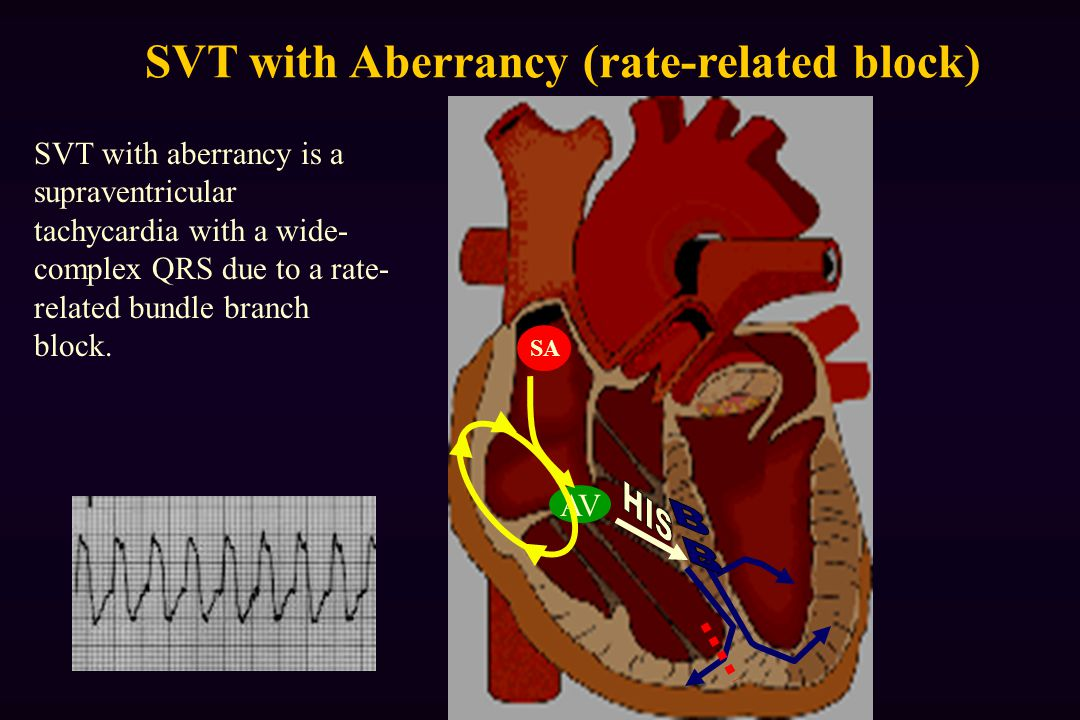 SVT with Aberrancy (rate-related block)