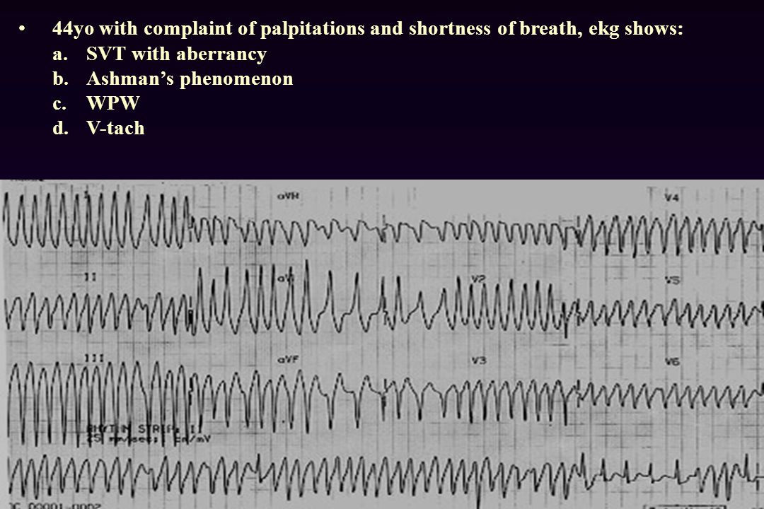 44yo with complaint of palpitations and shortness of breath, ekg shows: