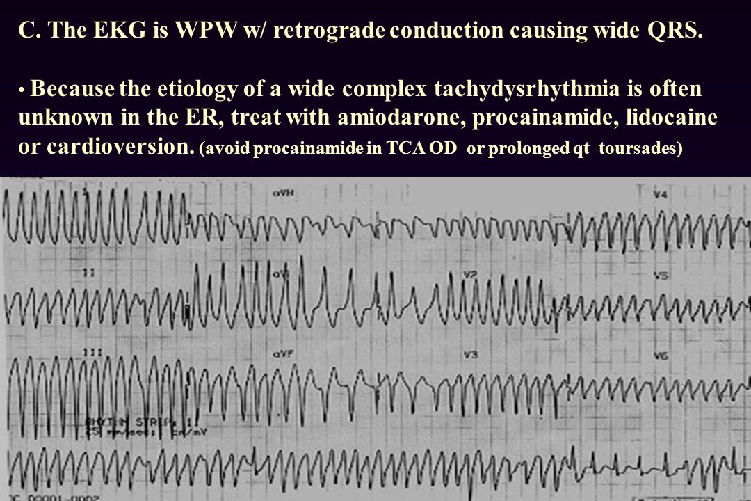 C. The EKG is WPW w/ retrograde conduction causing wide QRS.