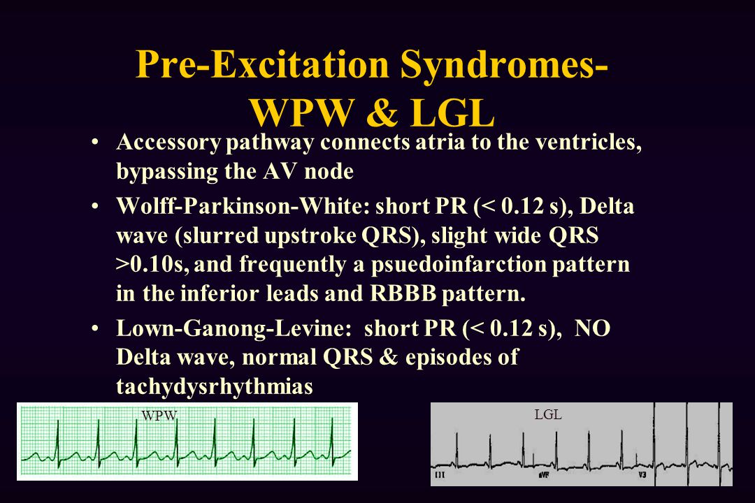 Pre-Excitation Syndromes-WPW & LGL