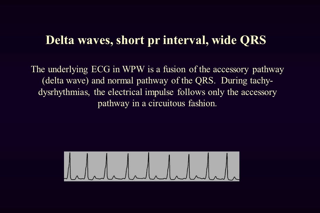 Delta waves, short pr interval, wide QRS