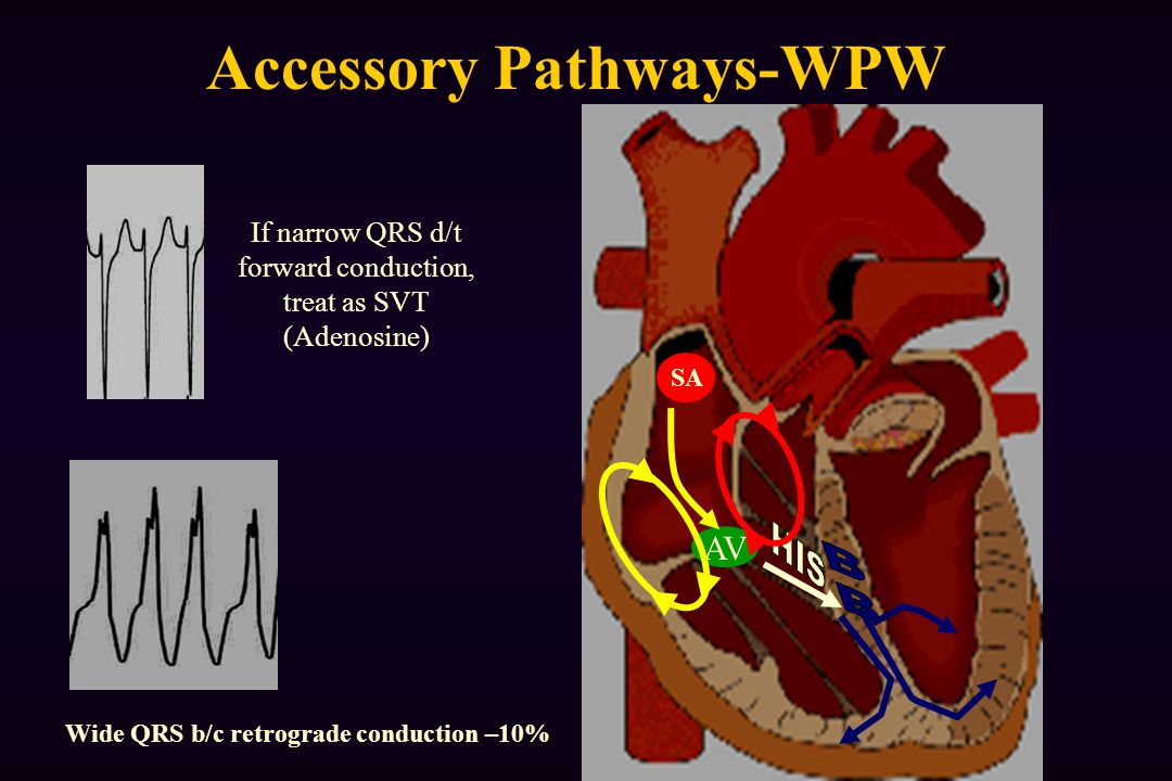 Accessory Pathways-WPW